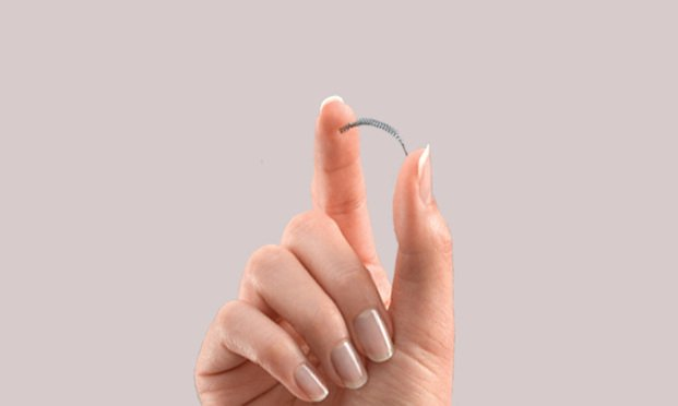 Essure permanent birth control.