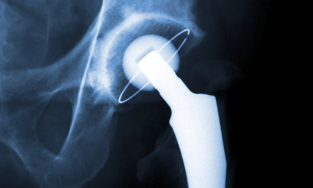 An X-ray of a hip replacement